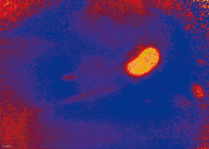 O2 image taken before renal artery ligation