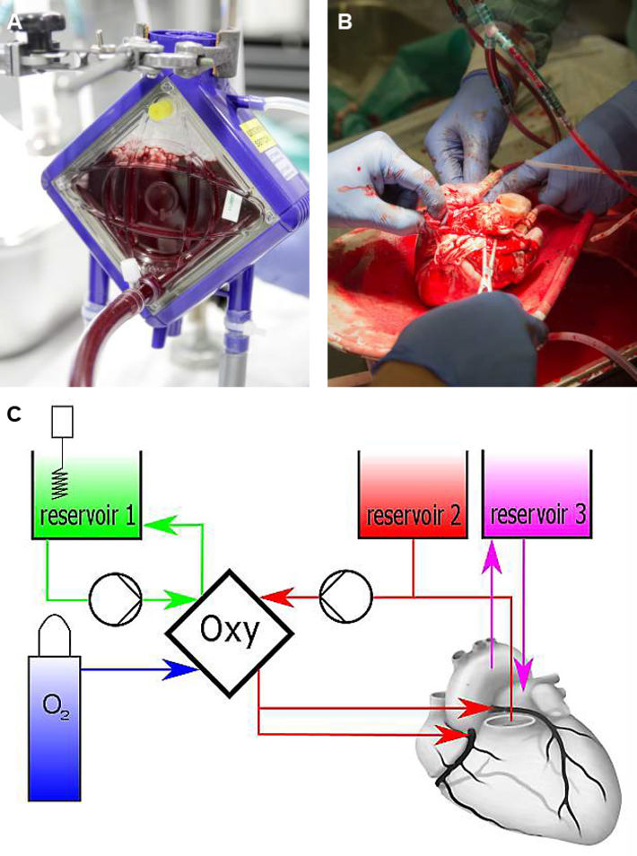 Oxygenator & connecting the heart to the artificial blood circulation