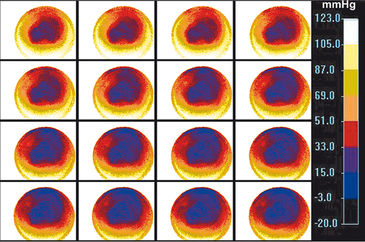 Time series O2 distribution images of cell culture
