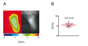 Determination of skin oxygenation with FLIM-based imaging technology